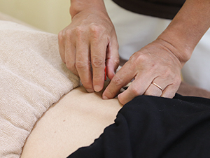 出雲 竹﨑鍼灸整骨院の鍼灸施術風景